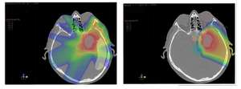 Guz mózgu. Terapia protonowa w Czechach gdy liczy się czas