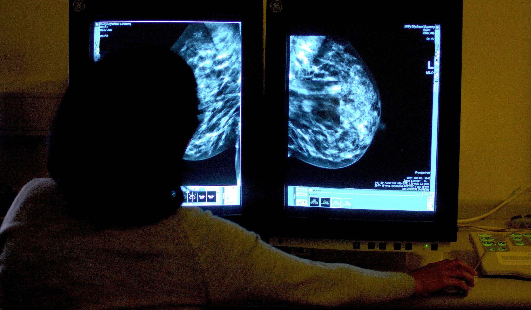 Bezpłatne badania mammograficzne w Warszawie